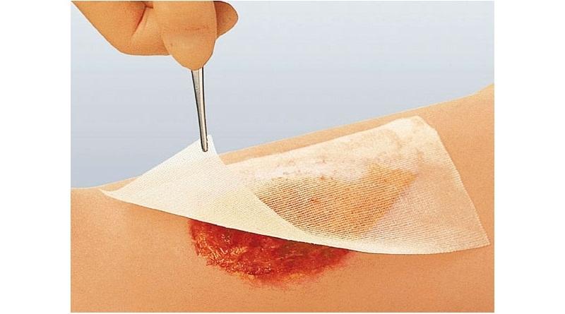 Најновији третман рана