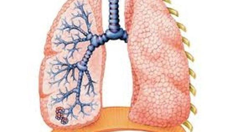 Хронична опструктивна болест плућа