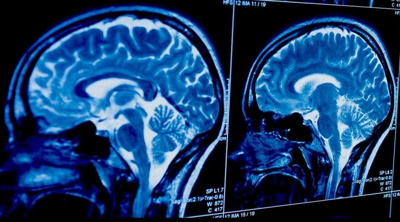 Тумори мозга